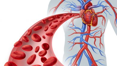 Photo of Hidden Signs of Arterial Blockages